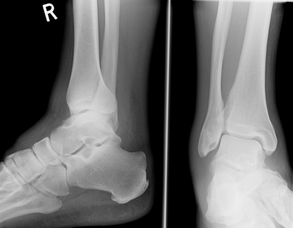 The Ankle