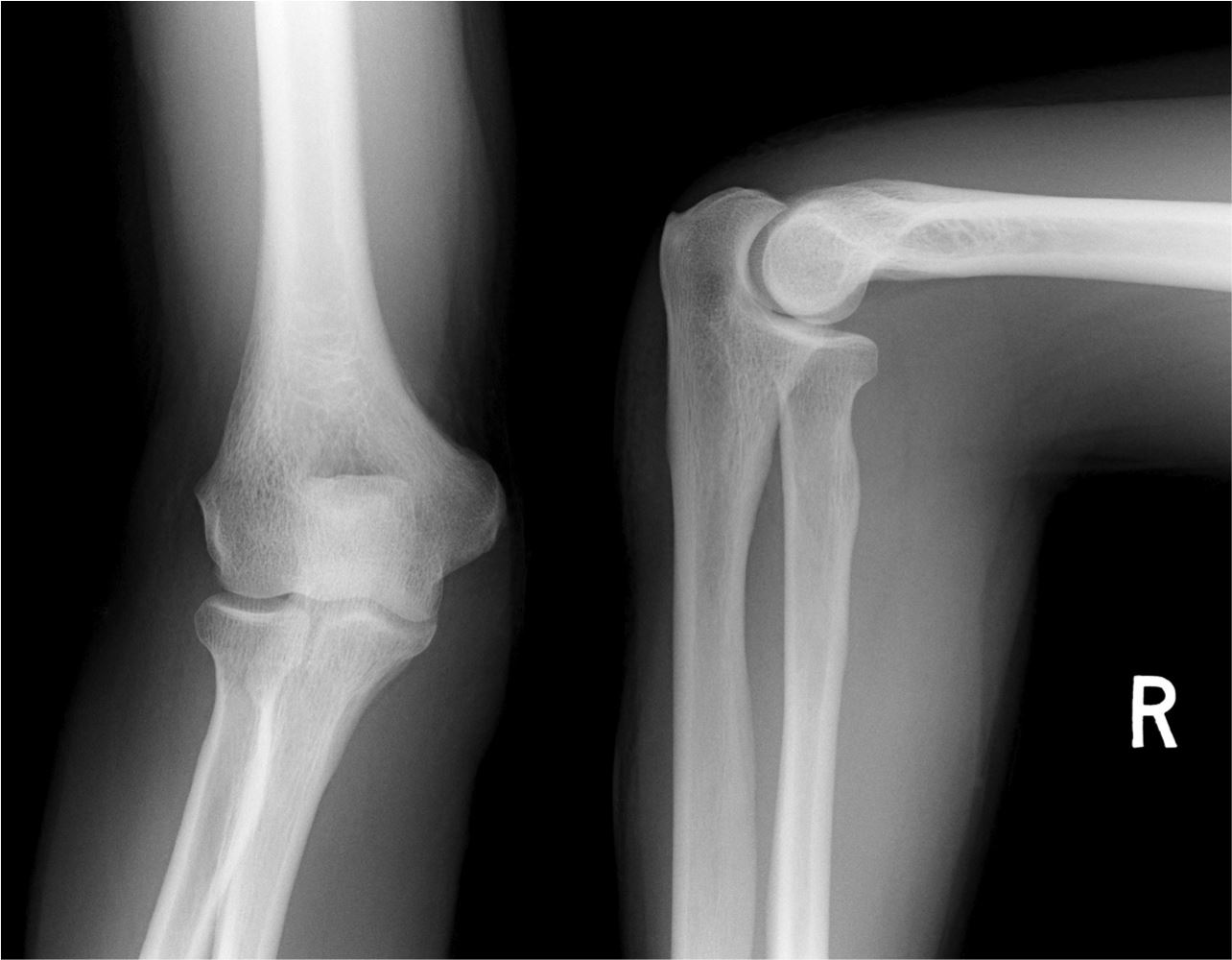 left elbow x ray - photo #45