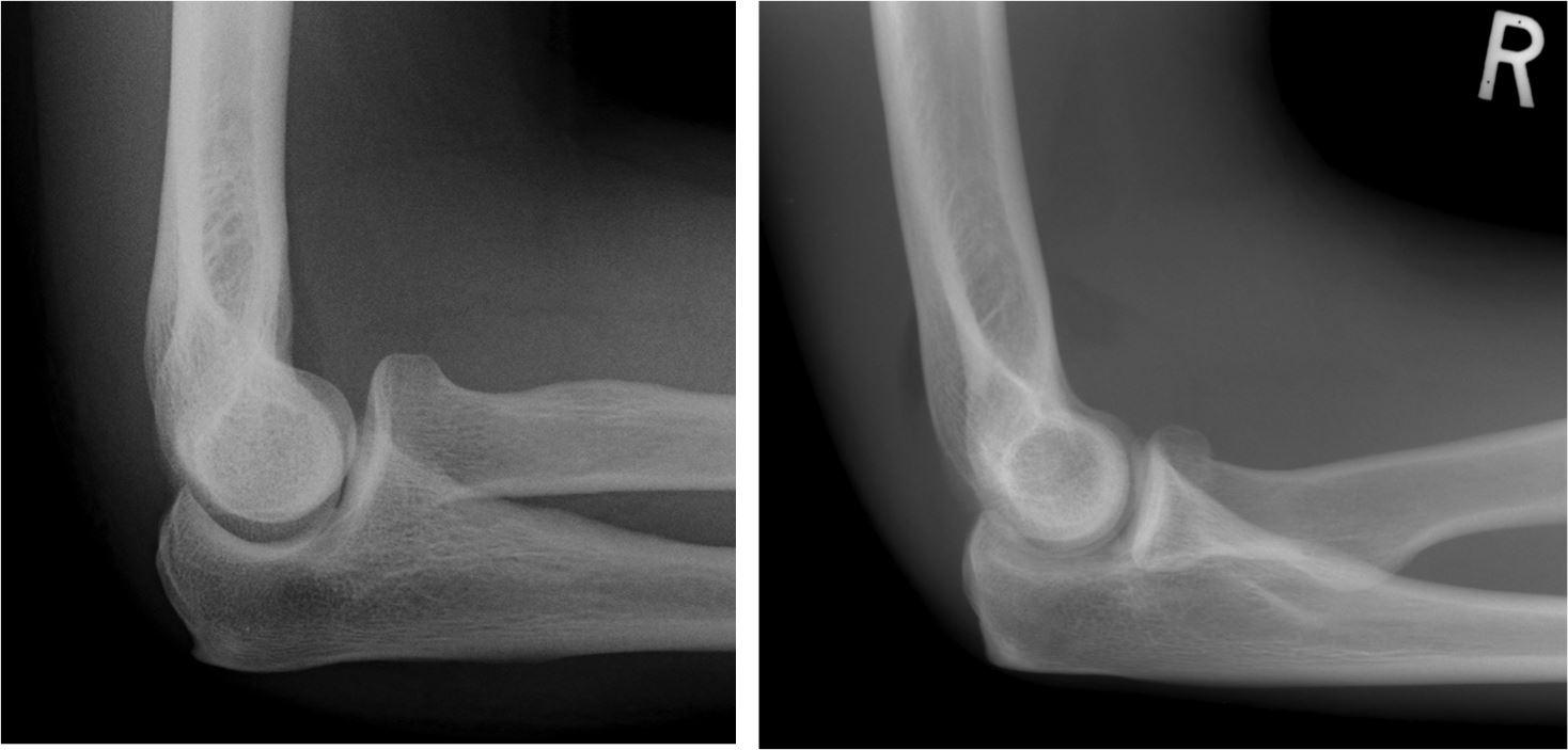 X Ray Broken Elbow The Elbow
