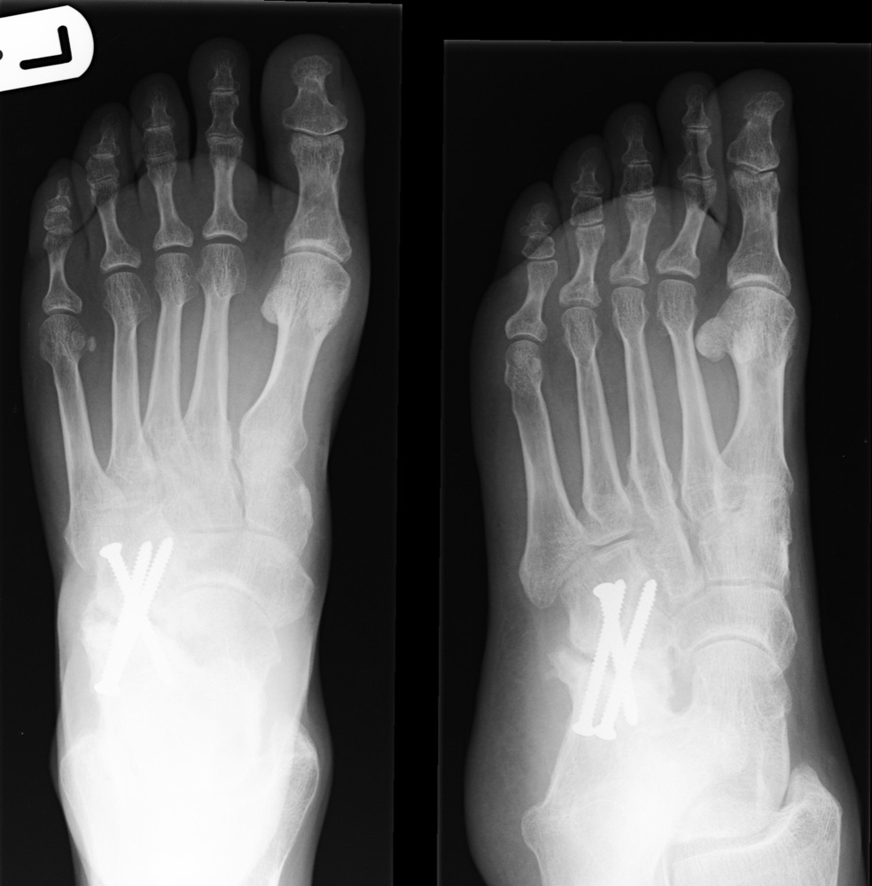 fractured bone in foot