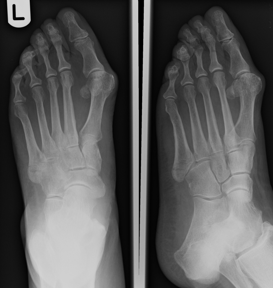 to a transverse fracture of the proximal shaft of the 5th metatarsal
