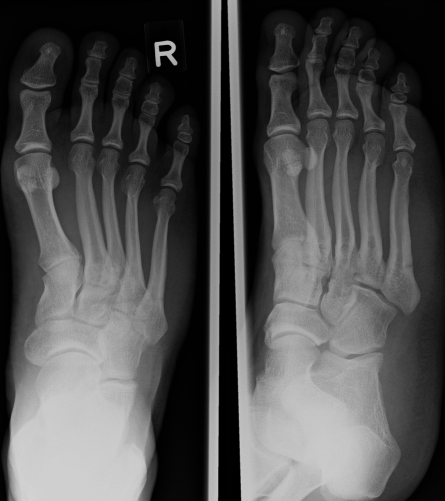 Proximal 5th Metatarsal Fracture