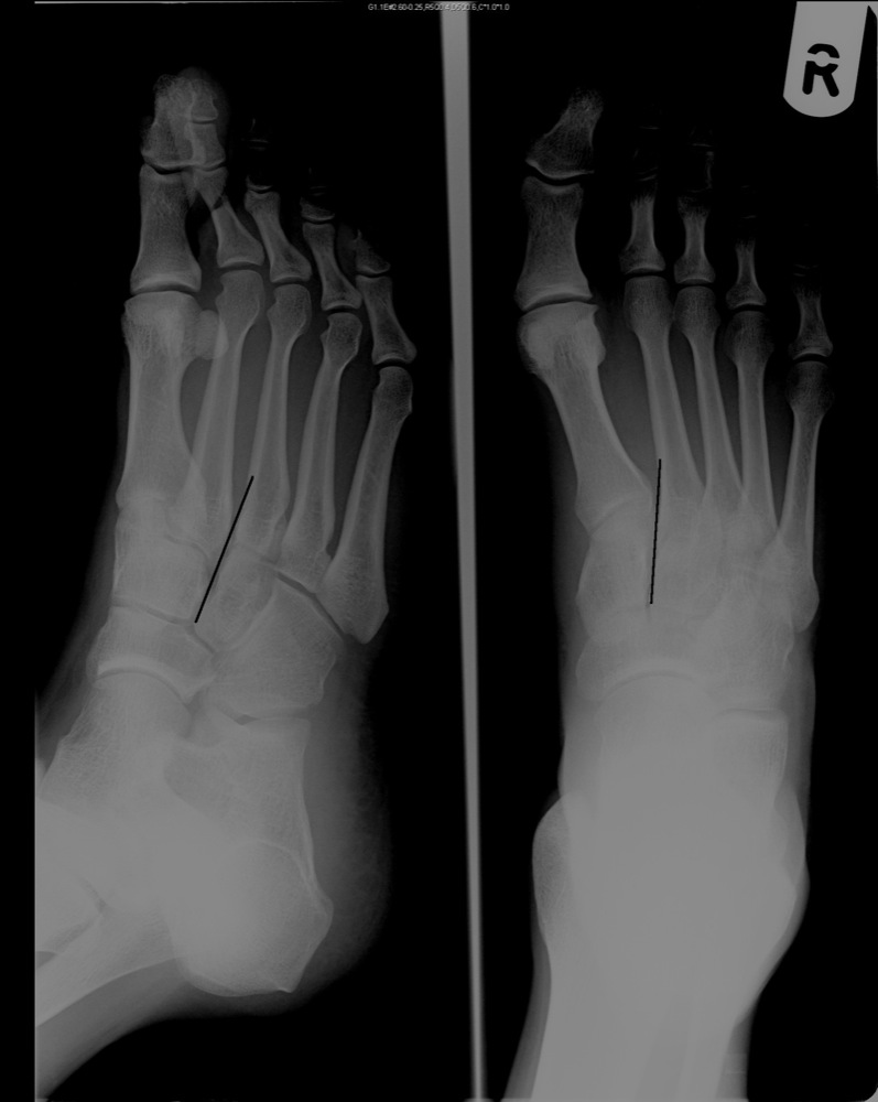 Attractive Lateral Foot X Ray Anatomy Pictures - Physiology Of Human ...