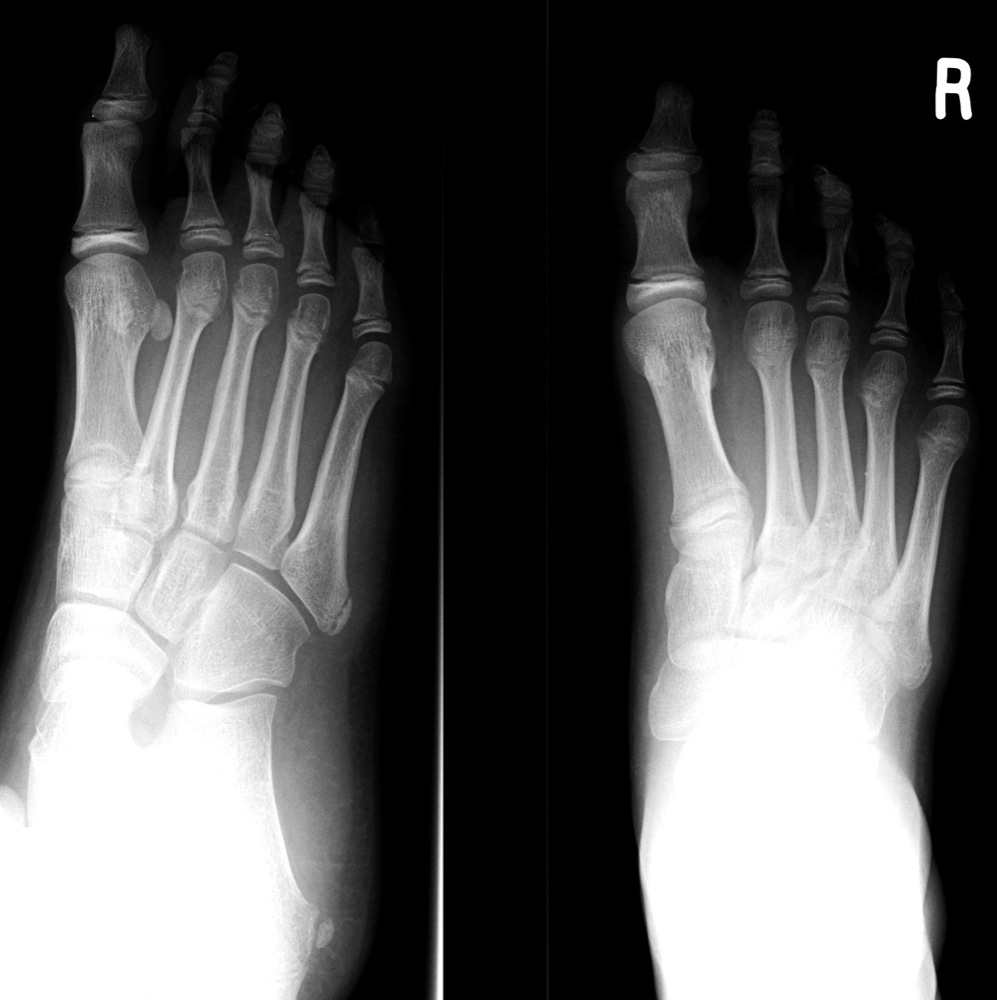 The normal apoph...Xray Of Childs Foot