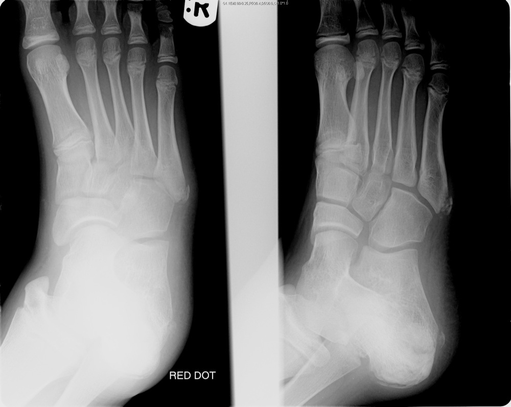 5th Metatarsal Growth Plate