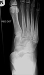 Midtarsal fracture-dislocation