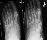 Lisfranc fracture-dislocation