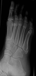 Fracture base 5th metatarsal / normal apophysis