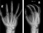 Fractured 4th metacarpal, dislocation 5th carpo-metacarpal joint