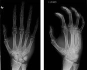 Fracture base 5th metacarpal