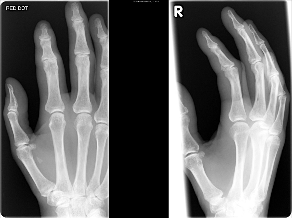 Dislocation Glass Fracture