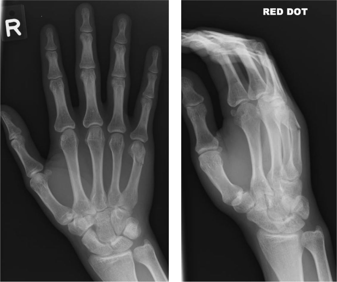 finger dislocation reduction  finger  get free image about