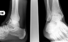 Synovial osteochondromatosis - ankle