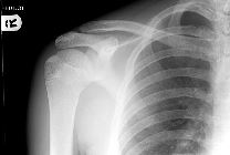 Normal paediatric shoulder