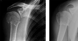 Greater tuberosity, surgical neck fractures