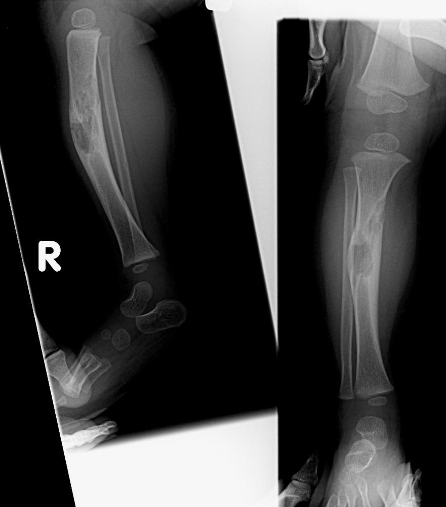 Bone Tumours And Benign Lytic Lesions