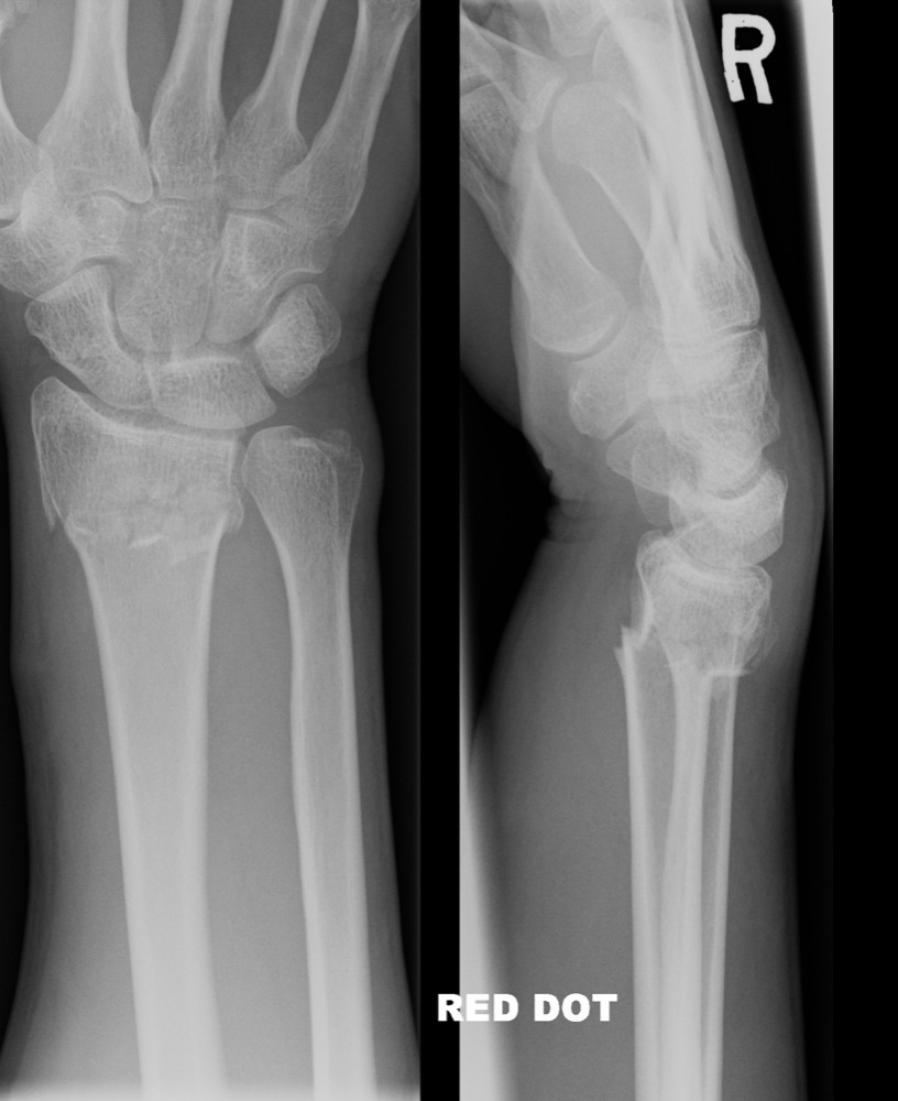 Lateral Hand X Ray Anatomy Image Collections Human Body Anatomy